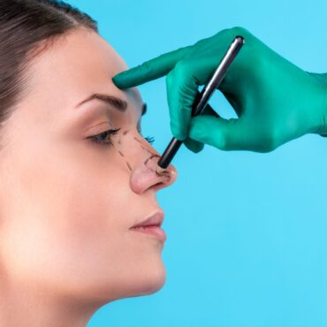 Is a Rhinoplasty Right for You?