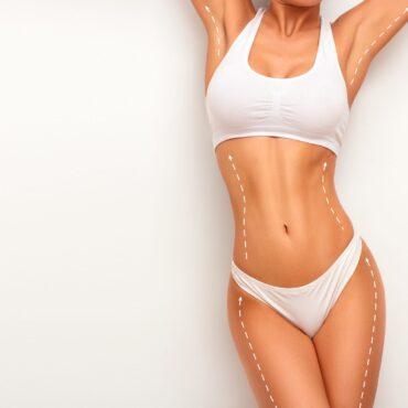 Top Ten Questions About Liposuction